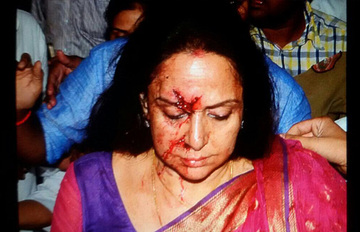 Hema Malini accident: Arrested driver released on bail